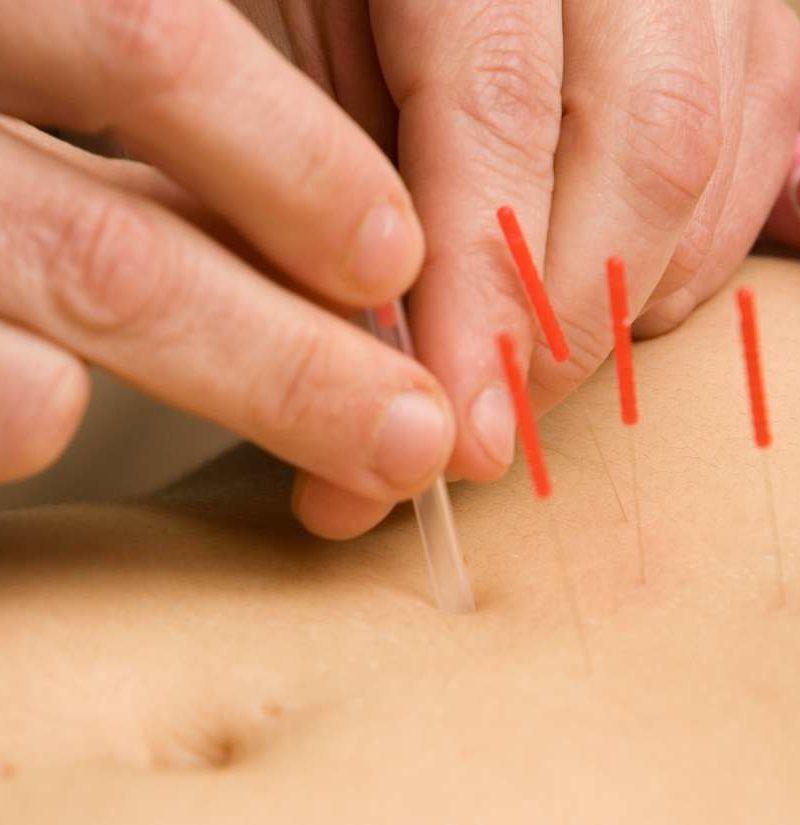 Nature Acupuncture